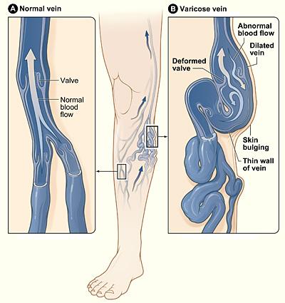 История по хирургии варикозная болезнь нижних конечностей