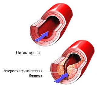 Болит горло во рту белые язвочки